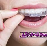 پاسخ به سوالات متداول درباره ی ارتودنسی دندان