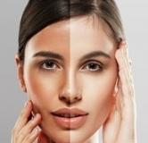 سفید کردن پوست سبزه با ۲۷ نوع راهکار و ماسک سفید کننده پوست عالی