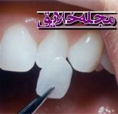 پاسخ به سوالات متداول در مورد لمینت دندان