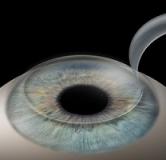 هر آنچه باید درباره عمل جراحی لیزیک چشم (LASIK) بدانید