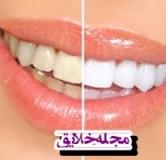 بلیچینگ دندان چیست ؟ پاسخ به سوالات مربوط با بلیچینگ دندان
