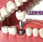 ایمپلنت دندان چیست ؟ همه چیز درباره ی ایمپلنت دندان
