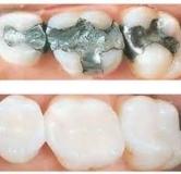هر آنچه که باید درباره ی کامپوزیت کردن دندان بدانید!
