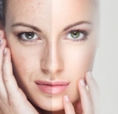 جوانسازی پوست صورت با لیزر در عرض چند دقیقه