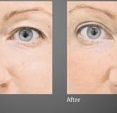 بلفاروپلاستی چیست ؟ همه چیز درباره ی جراحی زیبایی پلک چشم