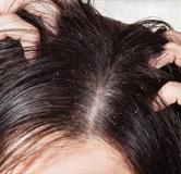 طرز تهیه ۹ شامپو خانگی برای موهای چرب با مواد طبیعی