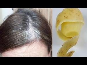 طرز تهیه و استفاده از پوست سیب زمینی برای از بین بردن سفیدی مو
