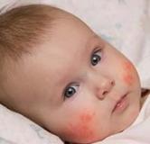درمان گیاهی درماتیت آتوپیک یا اگزما